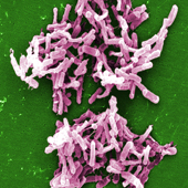 Clostridium Difficile Bacteria (Photo Credit: Janice Haney Carr)